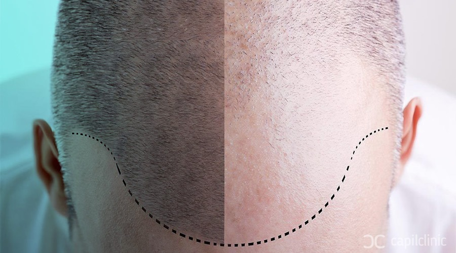 Types of hair transplants
